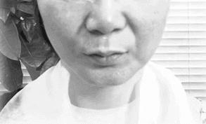 ほうれい線が気になる女性 | 美顔器で対策